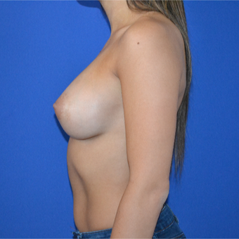 25-34 year old woman treated with Breast Augmentation after 3094104