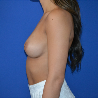 25-34 year old woman treated with Breast Augmentation before 3094104