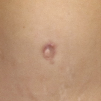 Belly Button Surgery for this 40 Year Old Woman after 3059316
