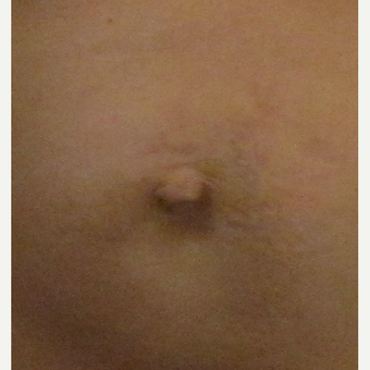 Belly Button Surgery for this 40 Year Old Woman before 3059316