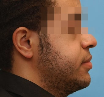 Jaw surgery - Before and after after 1309367