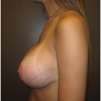 25-34 year old woman treated with Breast Lift with Implants after 3604640