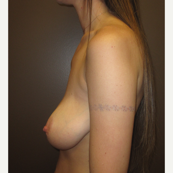 25-34 year old woman treated with Breast Lift with Implants before 3604640