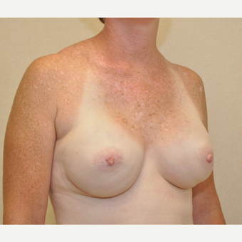 45-54 year old woman treated with Breast Reconstruction after 3127724