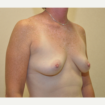 45-54 year old woman treated with Breast Reconstruction before 3127724