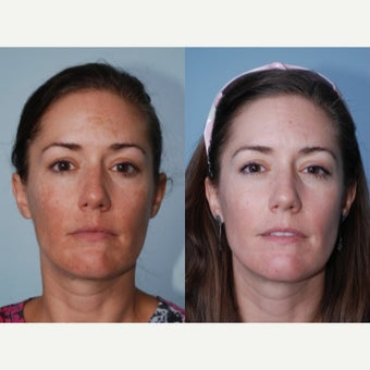 25-34 year old woman treated with Melasma Treatment before 2474952