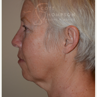 55-64 year old woman treated with Facelift before 3399084