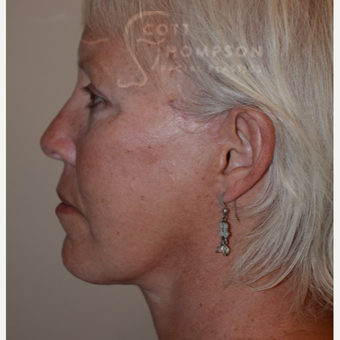 55-64 year old woman treated with Facelift after 3399084