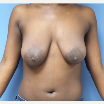 25-34 year old woman treated with Breast Lift with Implants before 3180212