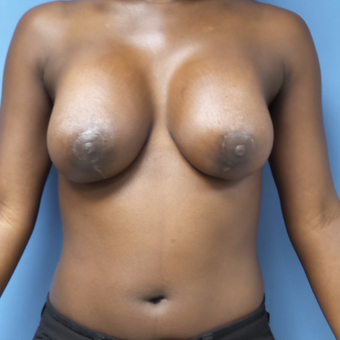 25-34 year old woman treated with Breast Lift with Implants after 3180212