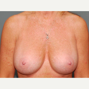 49 y/o Inframammary Sub Muscular Breast Augmentation after 3066040