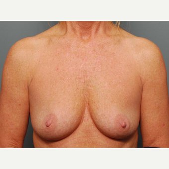 49 y/o Inframammary Sub Muscular Breast Augmentation before 3066040