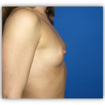 25-34 year old female treated with Breast Implants before 3131721