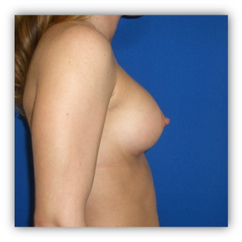 25-34 year old female treated with Breast Implants after 3131721