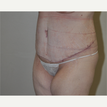 35-44 year old woman treated with Tummy Tuck after 3844275