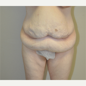 35-44 year old woman treated with Tummy Tuck before 3844275