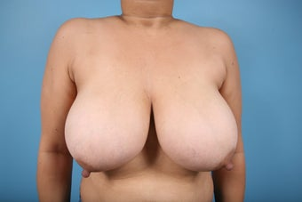 Breast Reduction before 553656