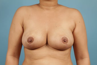 Breast Reduction after 553656