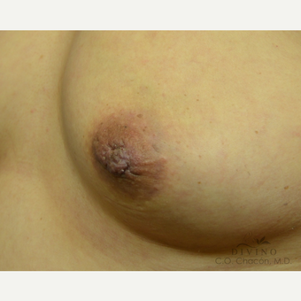45-54 year old woman treated with Nipple Surgery after 3391898