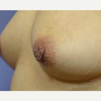45-54 year old woman treated with Nipple Surgery before 3391898