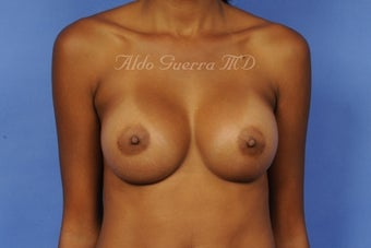 27 Year Old Woman Breast Augmentation Silicone Breast Implants A Cup to D Cup after 698355
