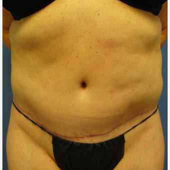 35-44 year old woman treated with Tummy Tuck & Liposuction after 3082692