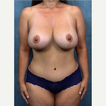 45-54 year old woman treated with Mommy Makeover after 2186126