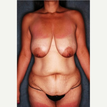 45-54 year old woman treated with Mommy Makeover before 2186126