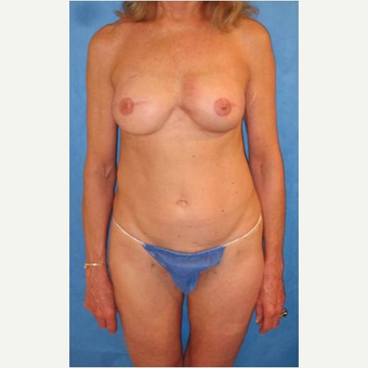 63 year old woman treated with implant removal and PAP flap Breast Reconstruction Revision after 3724559