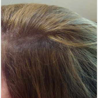 45-54 year old woman treated with PRP for Hair Loss after 2830797