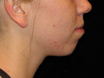 25-34 year old woman treated with Voluma 3503028