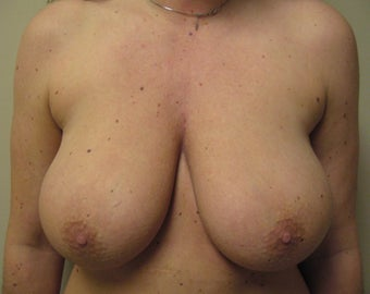 Breast Reconstruction with Expander and Alloderm before 1097438