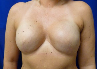 Breast Reconstruction with Expander and Alloderm after 1097438