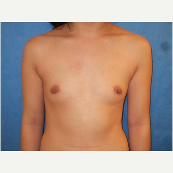 23 year old woman treated with Breast Augmentation before 3725729
