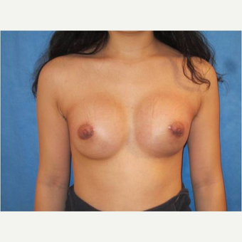 23 year old woman treated with Breast Augmentation after 3725729