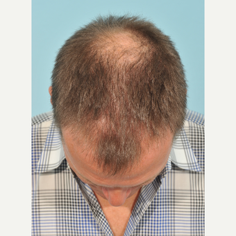 45-54 year old man treated with Hair Transplant before 3236979