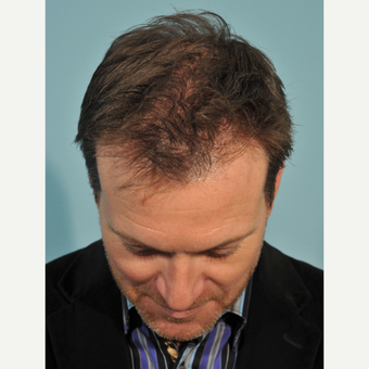 45-54 year old man treated with Hair Transplant after 3236979
