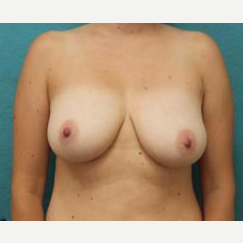 35-44 year old woman treated with Breast Lift with Implants before 3141013