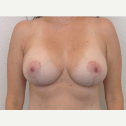 35-44 year old woman treated with Breast Lift with Implants after 3141013
