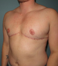 "35-44 year old treated with mastectomy (Female to Male ""Top"" Surgery) after 2109142"