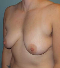 "35-44 year old treated with mastectomy (Female to Male ""Top"" Surgery) before 2109142"