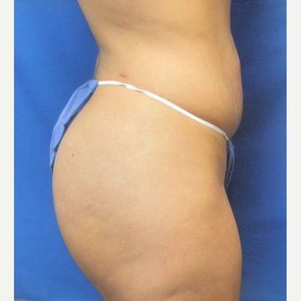 25-34 year old woman treated with Brazilian Butt Lift after 3071253