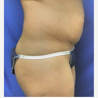 25-34 year old woman treated with Brazilian Butt Lift before 3071253