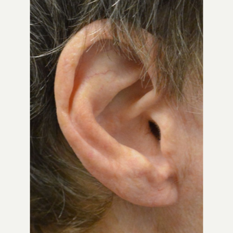 75 and up year old woman treated with Ear Lobe lift Surgery after 3453105