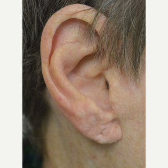 75 and up year old woman treated with Ear Lobe lift Surgery before 3453105