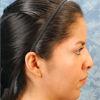 Rhinoplasty before 3124789