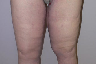 61 year old woman has Thigh Lift surgery