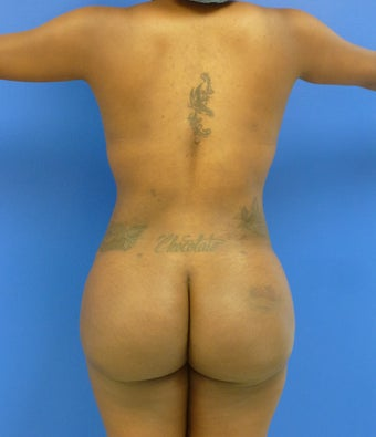 27 y.o. female – Liposuction of abdomen, flanks, and back with fat transfer to buttocks & hips – 1300 cc per side  1143810