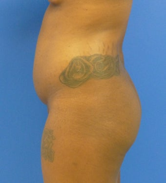 27 y.o. female – Liposuction of abdomen, flanks, and back with fat transfer to buttocks & hips – 1300 cc per side  before 1143810