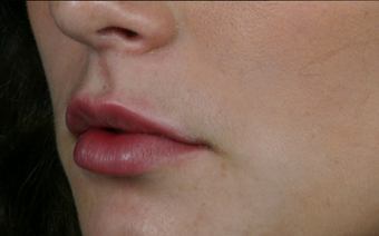 Juvederm Ultra Plus after 296320